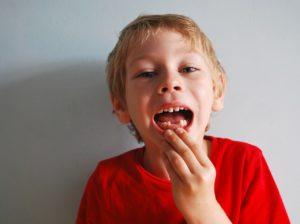 【成長】乳歯がまた抜けた→保管ケースへ